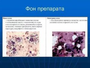 Бесструктурное вещество, макрофаги