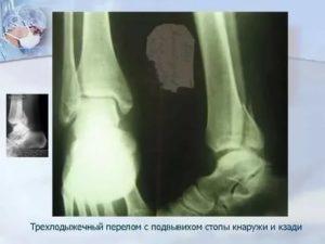 Тромбоз после трехлодыжечного перелома лодыжки с подвивихом