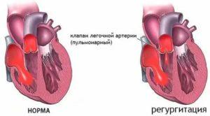 Регургитация на клапане легочной артерии