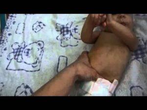 Помогите клизмы ребёнку в 2 месяца не может сама покакать