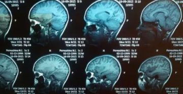Расшифровка КТ головного мозга ребёнка