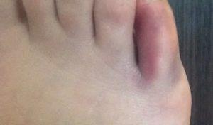 Резкая боль в пальце ноги. Посинение и отек