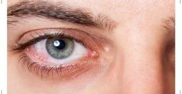 Краснеют глаза в линзах