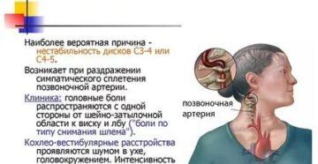 Шум в ухе, головокружение, головная боль, шейный остеохондроз