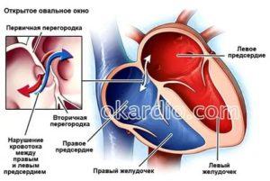 Аневризма МПП у грудничка