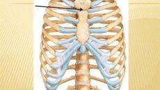 Растяжение хрящей в грудной клетке