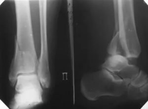 Перелом эпифиза большеберцовой кости