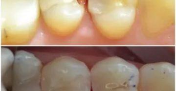 Реагирует зуб на холодное и сладкое после установки пломбы