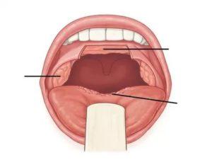 Проблема с горлом длинною в год! Язычная миндалина