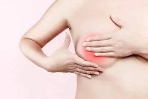Сильное жжение в груди после кормления