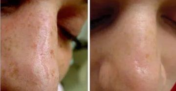 Можно ли иссечь атрофический рубец на носу?