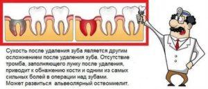 Удалили зуб. То сих пор есть примесь крови в слюне