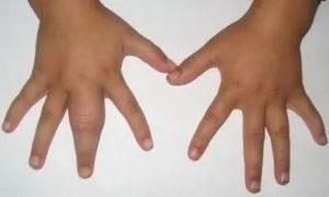 Отекают пальцы у ребёнка