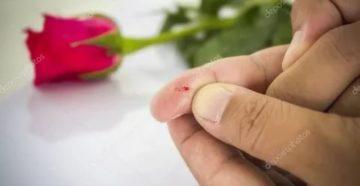 Ребенок уколол палец шипом розы