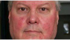 Красные пятна на лице после приёма лекарств