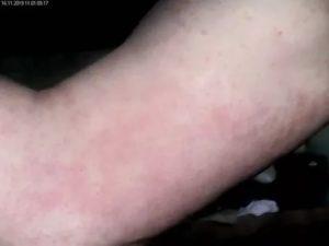 Сыпь на руках и ногах без зуда