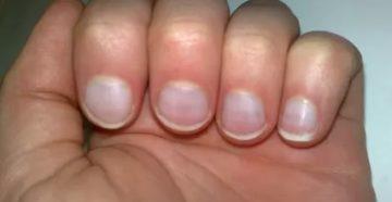 Синеют или белеют ногти