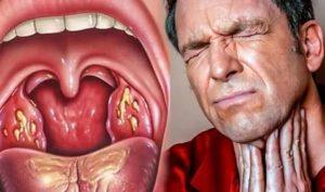 Тахикардия и ком горле