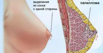 Боль в груди и выделения из соска