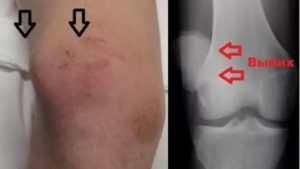 Растяжение коленного сустава, вывих надколенника