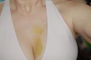 Синяк после пункции молочной железы