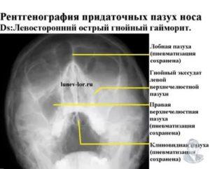 Тень на рентгене придаточных пазух носа