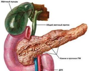 Увеличение поджелудочной железы. Перегиб желчного