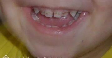 Темные полосы на передних зубах у ребенка