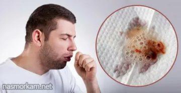 Сухой кашель и кровь в слюне