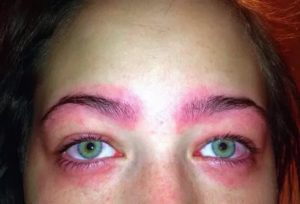 Аллергия на краску для бровей