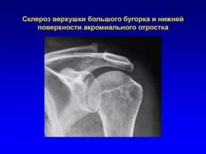 Уплотнение, склероз б/бугорка головки плечевой кости
