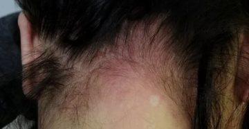Аллергия окрашивание волос антибиотики