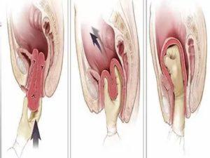 От чего могут болеть половые губы после родов?