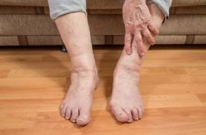 У бабушки 91 год болят ноги