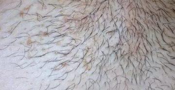 Зуд и шелушение на лобке и голене