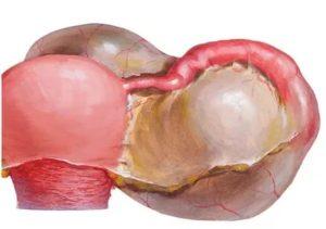 Параовариальная киста и гидросальпинкс