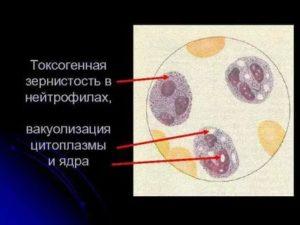 Токсогенная зернистость в крови