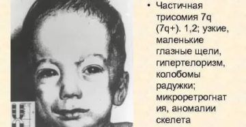 Трисомия по 7 хромосоме