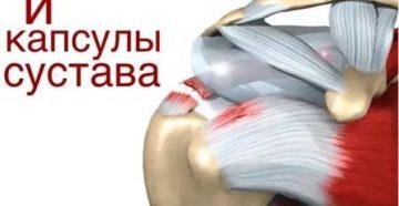 Разрыв суставной капсулы