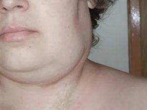 Опухла правая сторона горла
