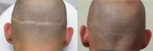Рубец на голове после операции