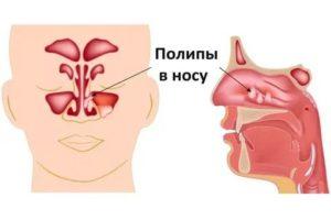 Аденоиды и заложенность носа