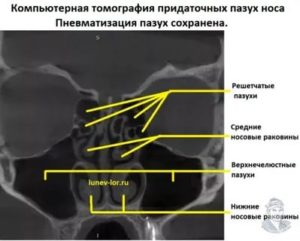 Пневматизация придаточных пазух носа