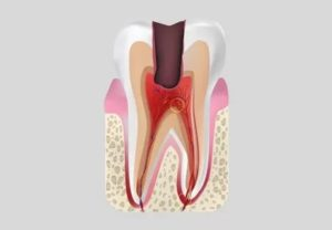 Стреляющая боль в зубе