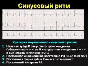 1100 синусовый ритм 1102 синусовая аритмия 2420 RSR (QR) в отв