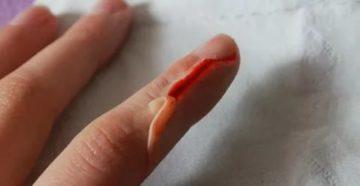 Заусенец оторвался на пальце