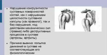 Нарушение конгруэнтности суставных поверхностей при трехлодыжечном переломе