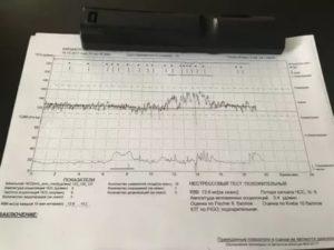 Расшифровка КТГ, оценка по Фишер 8, Кребс 10, нестрессовый тест положительный